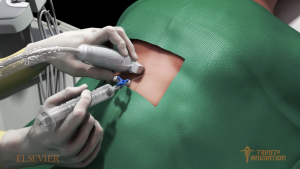 This is a 3D rendered image from medical animations showing doctors hands coming from the left side of the screen and performing a needle insertion into the pericardial sac on the back of a patient. This image specifically displays the hyper realistic textures of the 3D materials.