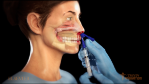 This image displays a 3D rendered image from the medical animation during an Epistaxis balloon devise inflation procedure. It is displaying a profile view of the figure and displaying internal organs of the head so the viewer can understand what the procedure accomplishes.