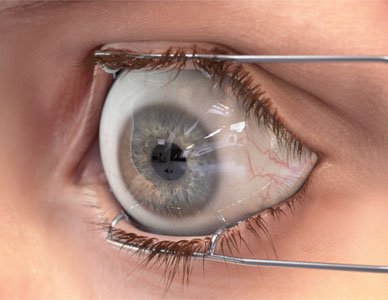 Photo-realistic rendering of a human eye being forced open by a medical apparatus.